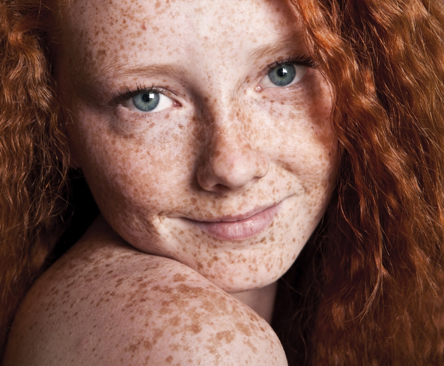 -embrace-your-fierce-freckles_900_1251866682